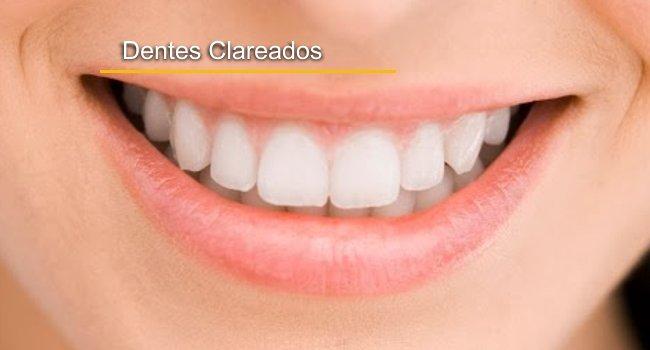 Clareamento Dental Em Curitiba E Sao Jose Dos Pinhais Ortozen